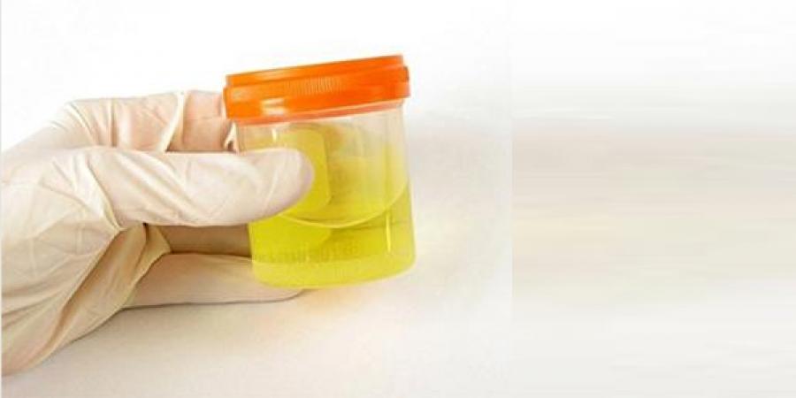 Өрхийн эмнэлгүүд шээсний шинжилгээ авч эхэлнэ