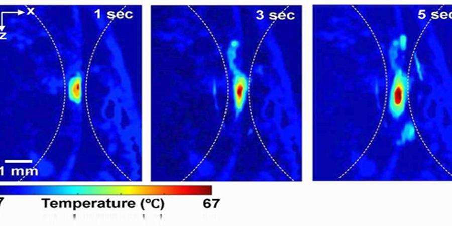 Биеийн гүнд байрлах эдийг гэрэл болон дуугаар хэмжих нь