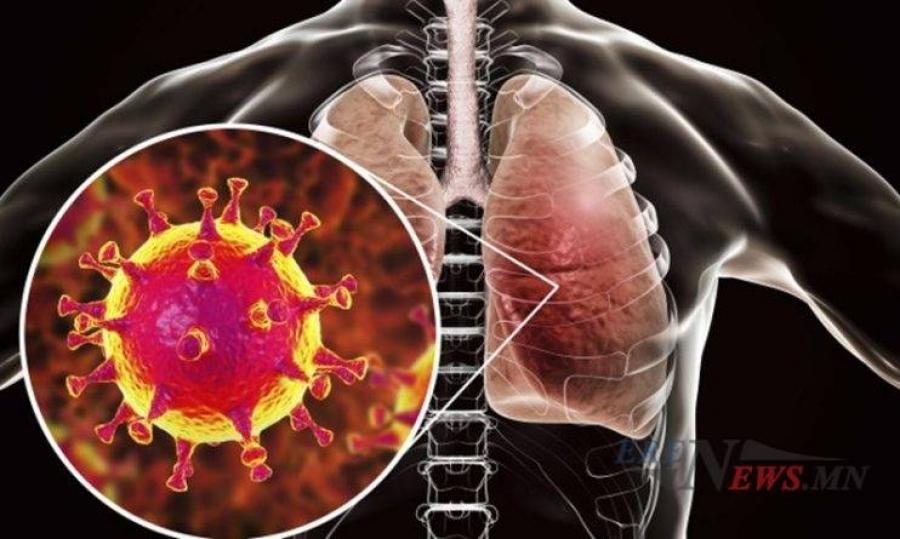 COVID-19 халдвараар 2858 хүн нас бараад байна