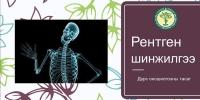 Рентген шинжилгээ гэж юу вэ?